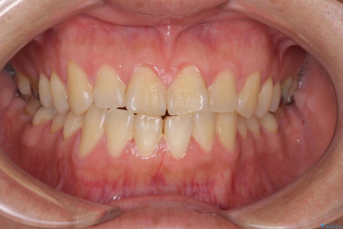 結婚式前に1日で歯を白くしたい(エクセレントコース) ビフォー