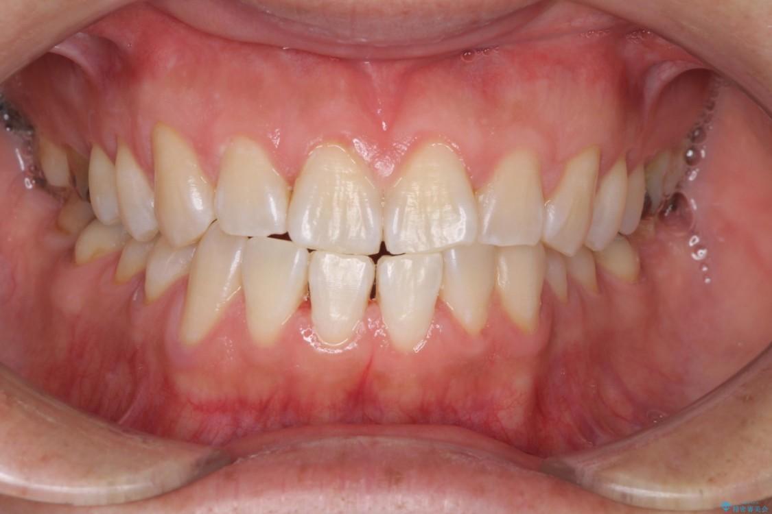結婚式前に1日で歯を白くしたい(エクセレントコース) アフター