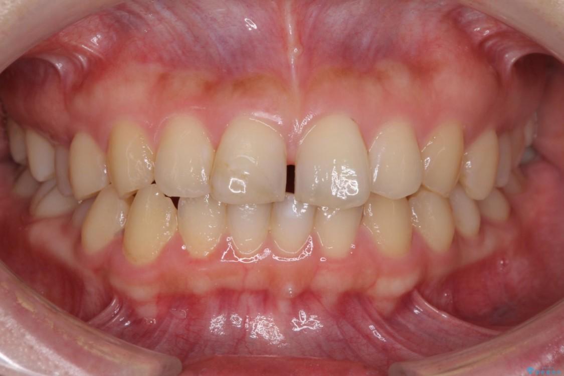 前歯のすきっぱを治したい マウスピース(ASOアライナー)による矯正治療 治療前