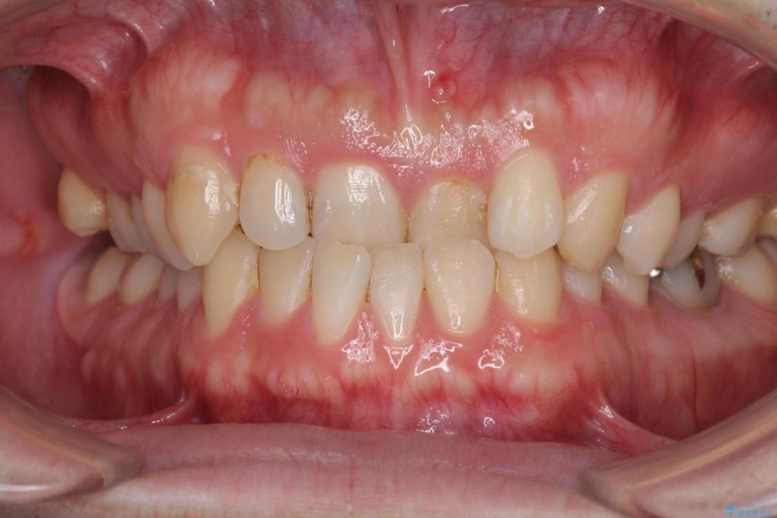 反対咬合で咬みにくい‼ インビザラインによる矯正治療 ビフォー