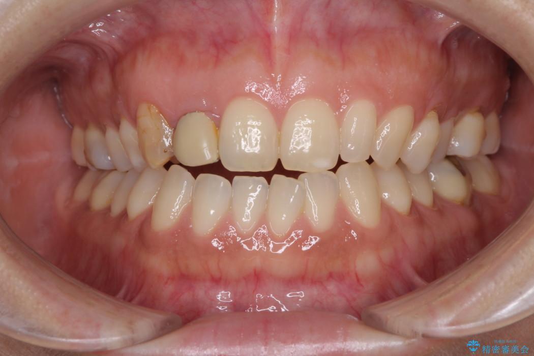 前歯の歯並びと小さい歯を改善 インビザライン矯正とオールセラミッククラウン 治療前