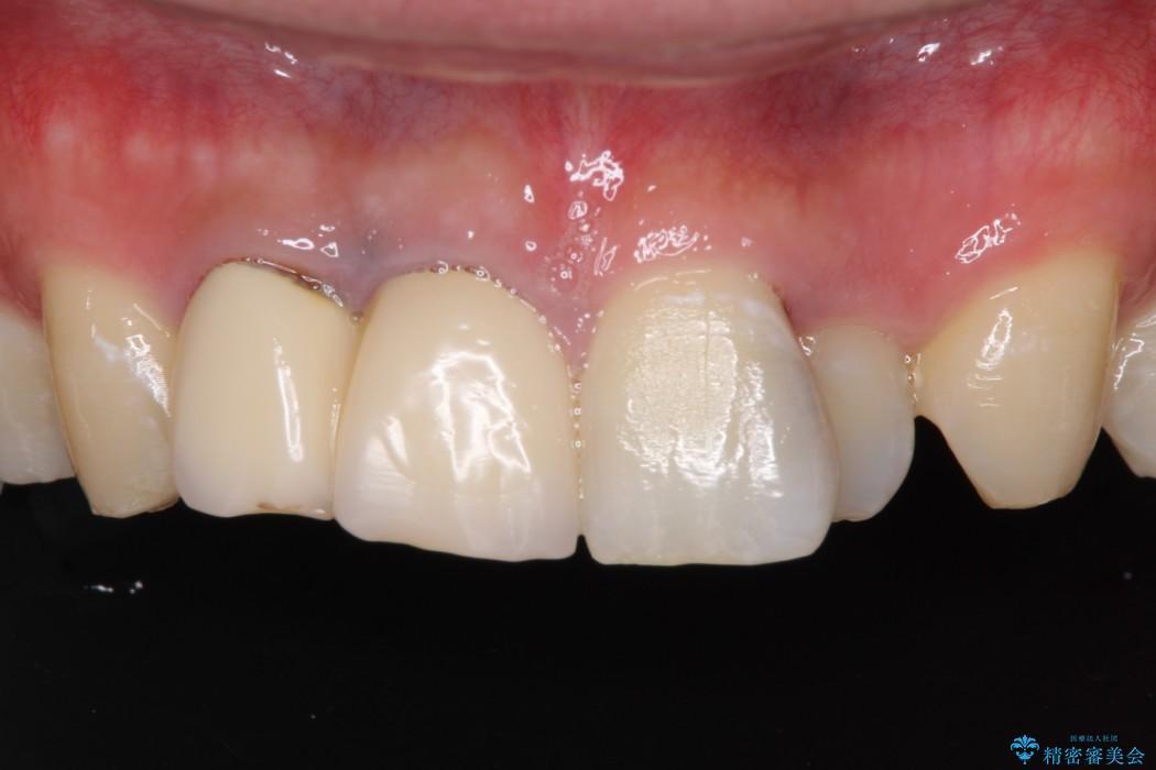 急いで前歯を治したい 抜歯とセラミックブリッジ 治療前