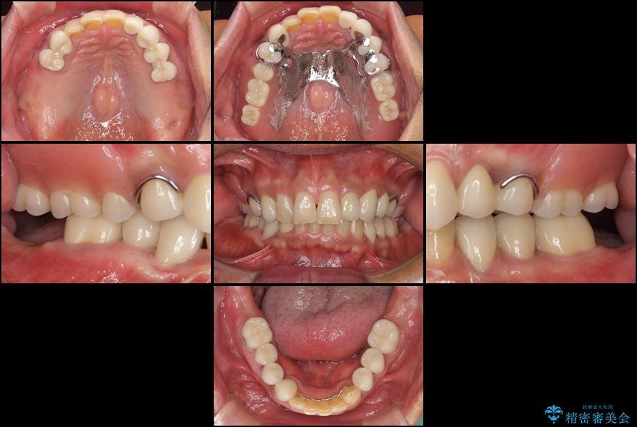 奥歯で物を噛めるようにしたい 入れ歯による咬合回復 アフター