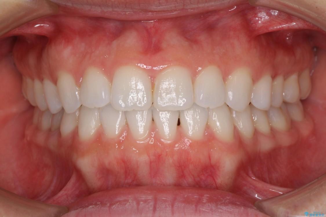 反対咬合の改善 インビザラインによる矯正治療 アフター