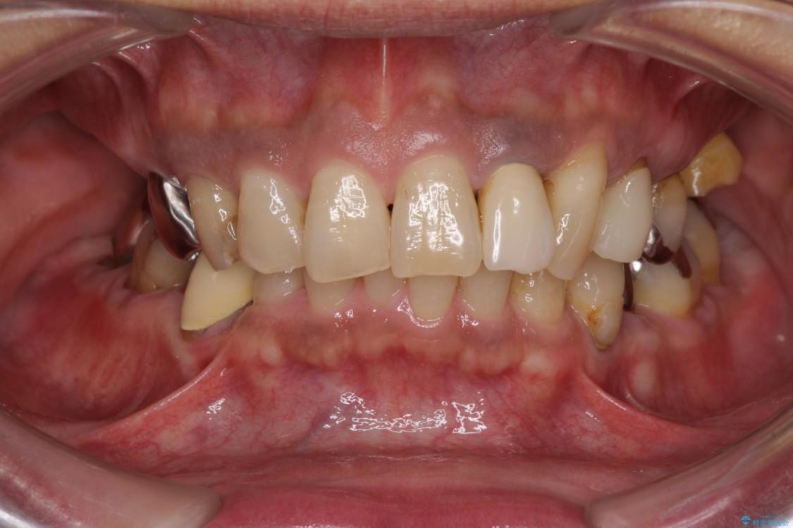 奥歯で物を噛めるようにしたい 入れ歯による咬合回復 治療前画像