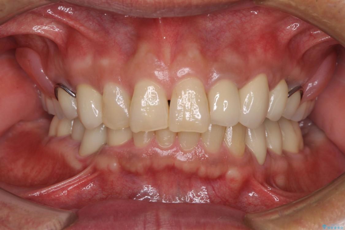 奥歯で物を噛めるようにしたい 入れ歯による咬合回復 治療後画像