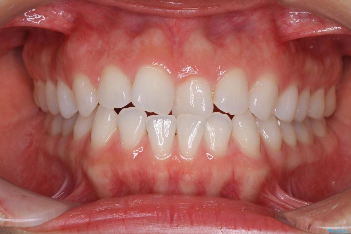 反対咬合の改善 インビザラインによる矯正治療 ビフォー