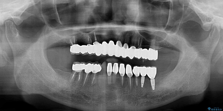 ボロボロの歯を何とかしたい 総合歯科治療による全顎治療 治療後画像