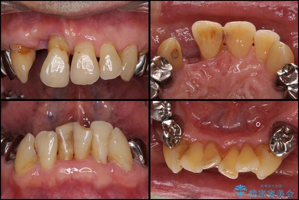 ボロボロの歯を何とかしたい 総合歯科治療による全顎治療 治療前画像