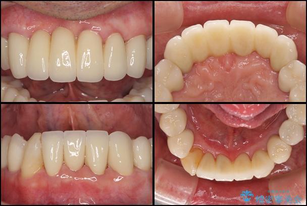 ボロボロの歯を何とかしたい 総合歯科治療による全顎治療 アフター