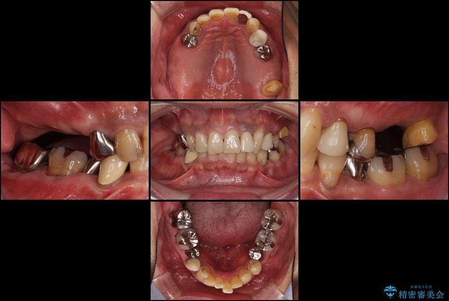 奥歯で物を噛めるようにしたい 入れ歯による咬合回復 治療前