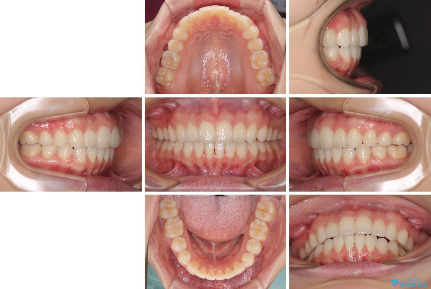 デコボコで飛び出した前歯をきれいに インビザラインによる矯正治療 治療後画像