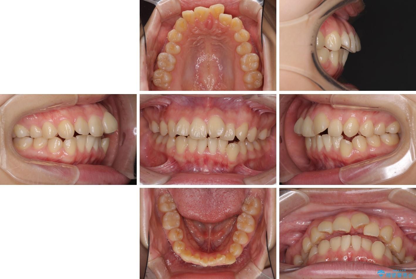 デコボコで飛び出した前歯をきれいに インビザラインによる矯正治療 治療前画像