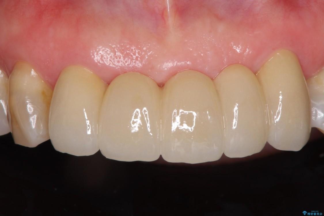 古くなった前歯のブリッジをオールセラミックに アフター