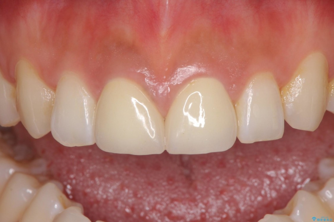 気になる前歯の隙間をオールセラミックで閉じる アフター