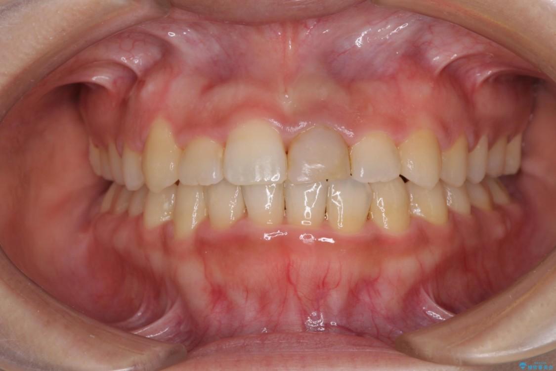 前歯の反対咬合 非抜歯のワイヤー矯正 アフター