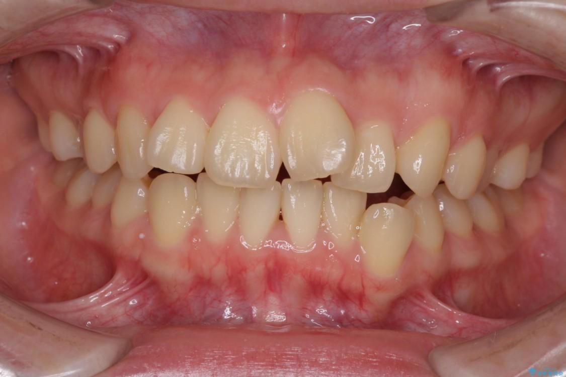 デコボコで飛び出した前歯をきれいに インビザラインによる矯正治療 ビフォー