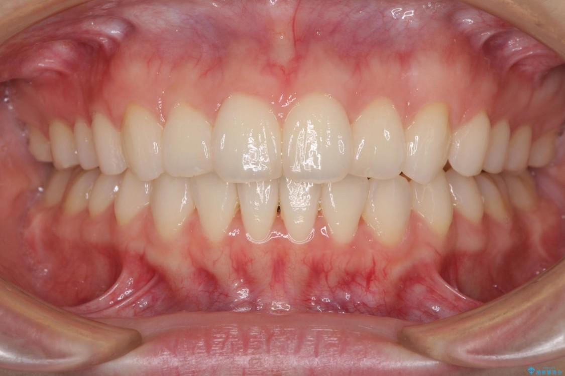デコボコで飛び出した前歯をきれいに インビザラインによる矯正治療 アフター