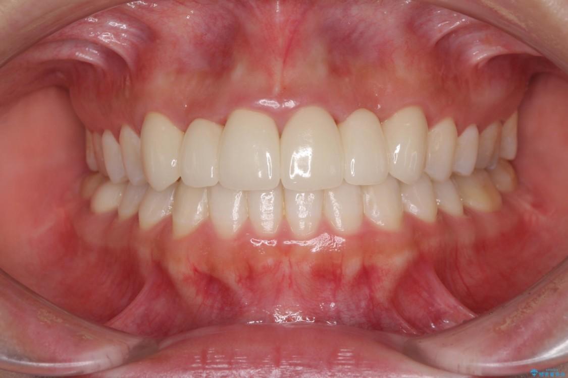 審美歯科治療と矯正歯科治療で気になる前歯を美しく アフター