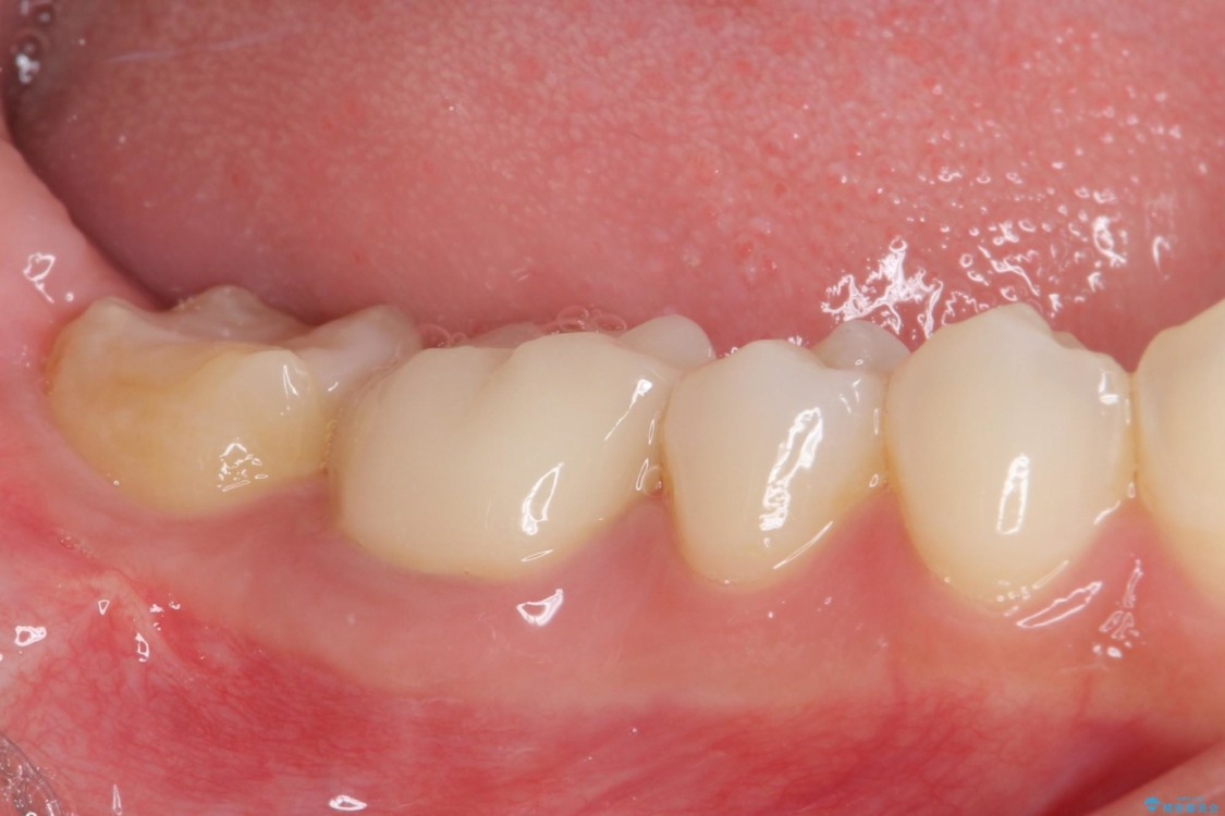 審美歯科治療と矯正歯科治療で気になる前歯を美しく 治療後画像