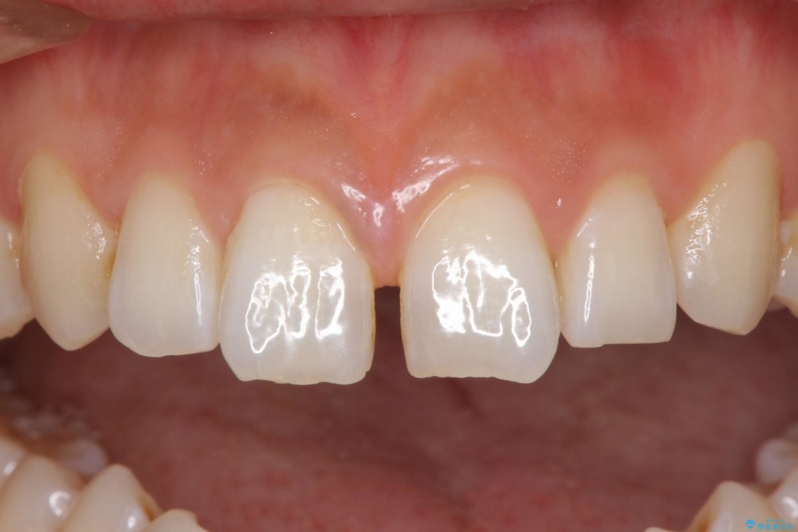 気になる前歯の隙間をオールセラミックで閉じる 治療前