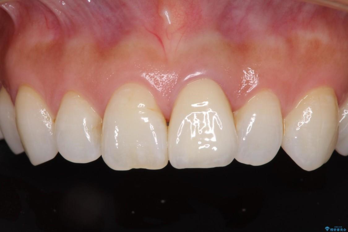 変色と捻じれの解消 前歯のオールセラミッククラウン アフター