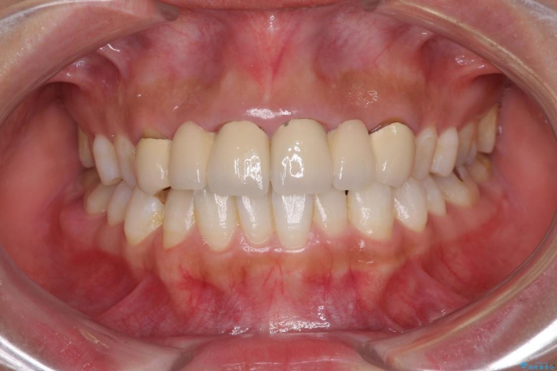 審美歯科治療と矯正歯科治療で気になる前歯を美しく ビフォー