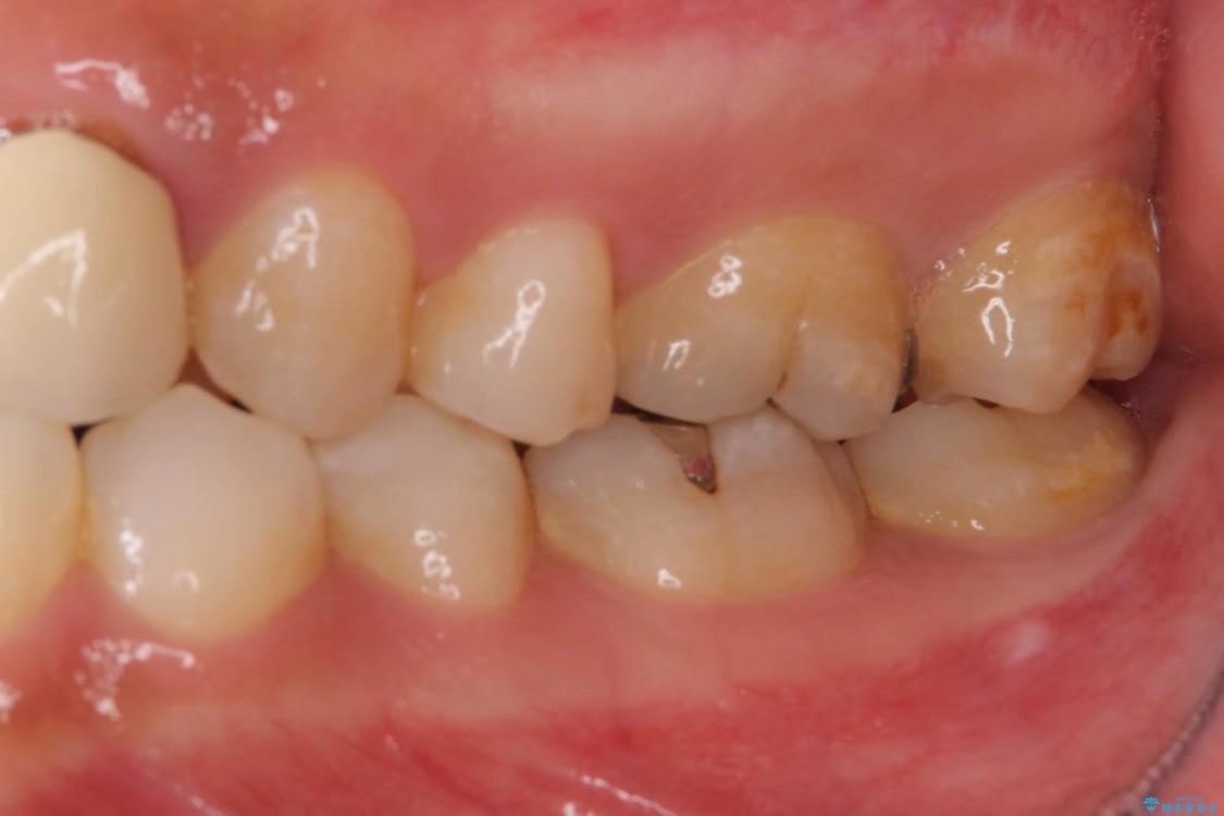 審美歯科治療と矯正歯科治療で気になる前歯を美しく 治療前画像
