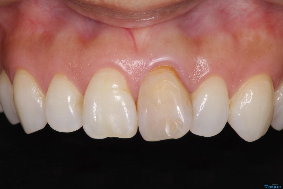 変色と捻じれの解消 前歯のオールセラミッククラウン ビフォー