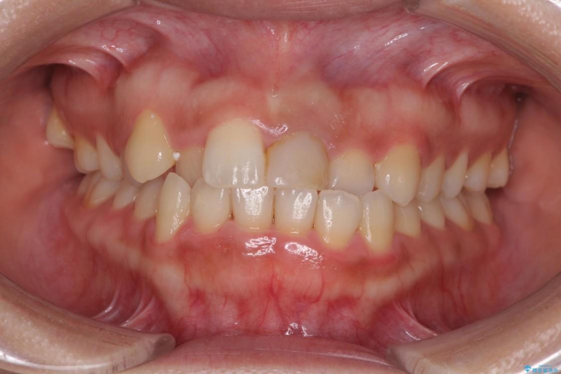 前歯の反対咬合 非抜歯のワイヤー矯正 ビフォー