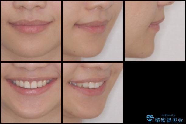 前歯の反対咬合を改善 上下裏側の抜歯矯正 治療後画像