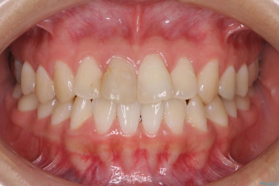 変色した歯をセラミックにしたい 歯自体が変色している場合 ビフォー