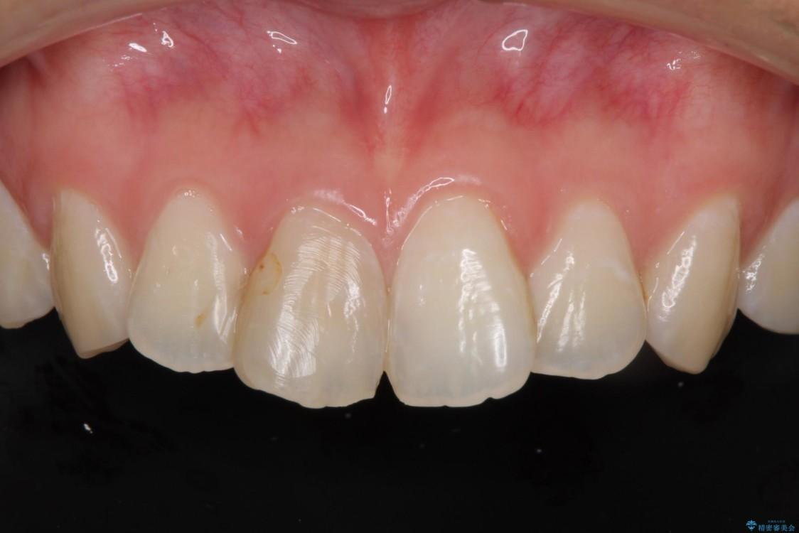 変色した歯をセラミックにしたい 歯自体が変色している場合 治療前画像
