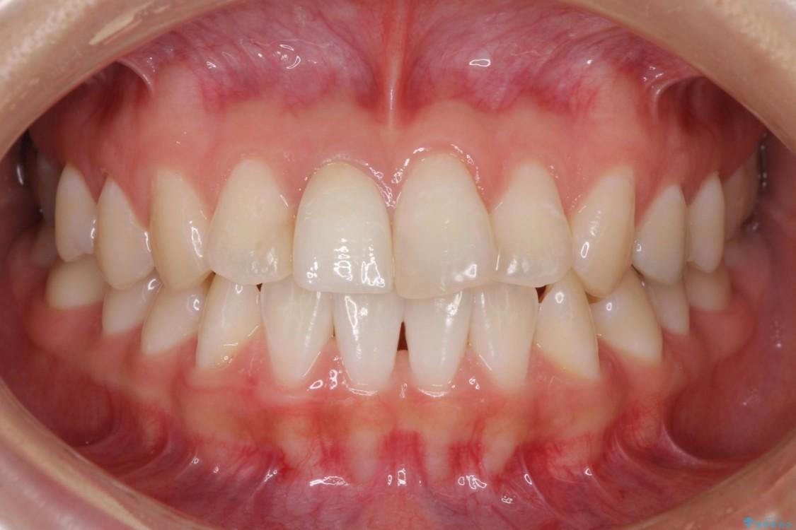 変色した歯をセラミックにしたい 歯自体が変色している場合 アフター