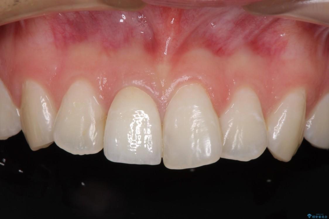 変色した歯をセラミックにしたい 歯自体が変色している場合 治療後画像