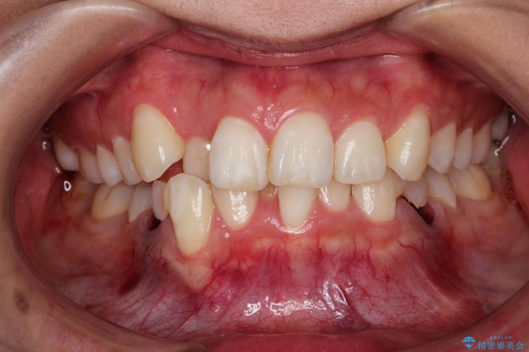 前歯の反対咬合を改善 上下裏側の抜歯矯正 ビフォー