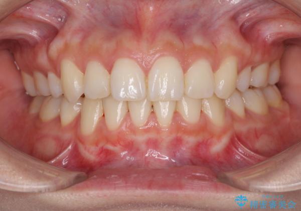 前歯の反対咬合を改善 上下裏側の抜歯矯正 アフター