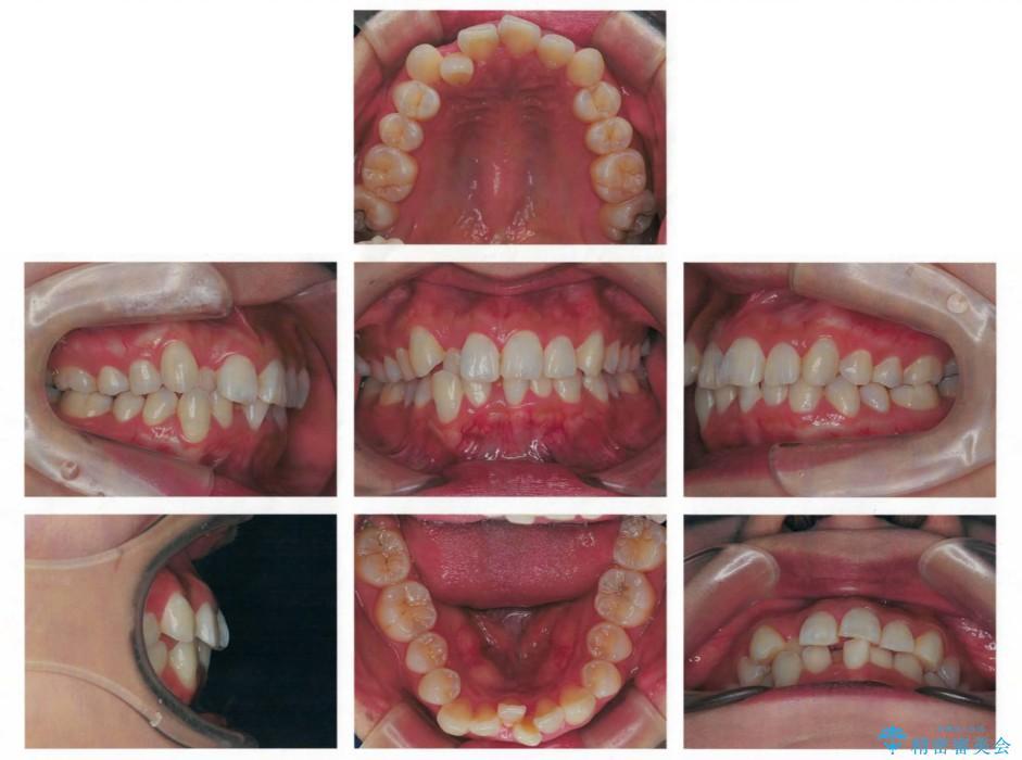 前歯の反対咬合を改善 上下裏側の抜歯矯正 治療前画像
