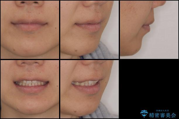 インビザラインによる矯正とインプラント補綴 深い咬み合わせと奥歯の欠損治療 治療後画像
