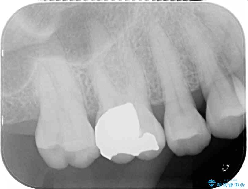 外れてしまった銀歯をゴールドインレーによって修復治療 治療前画像