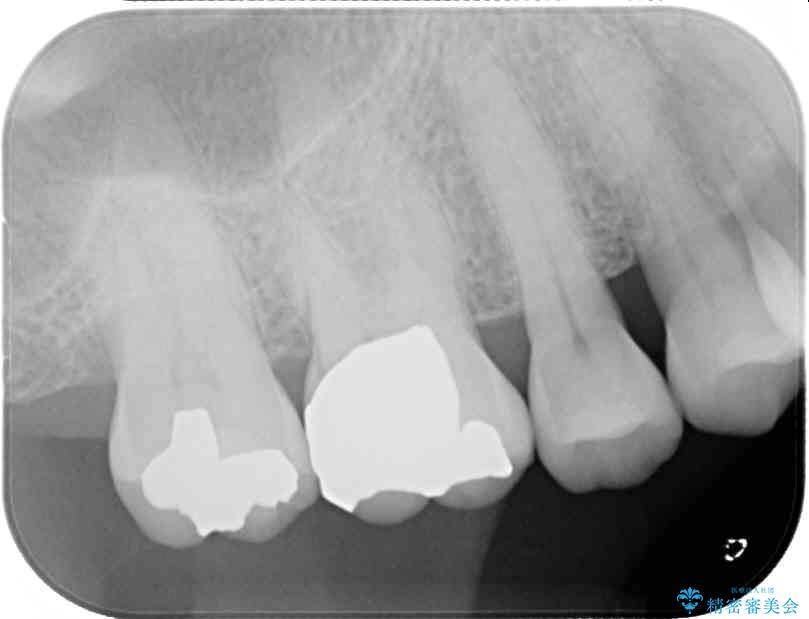 外れてしまった銀歯をゴールドインレーによって修復治療 治療後画像