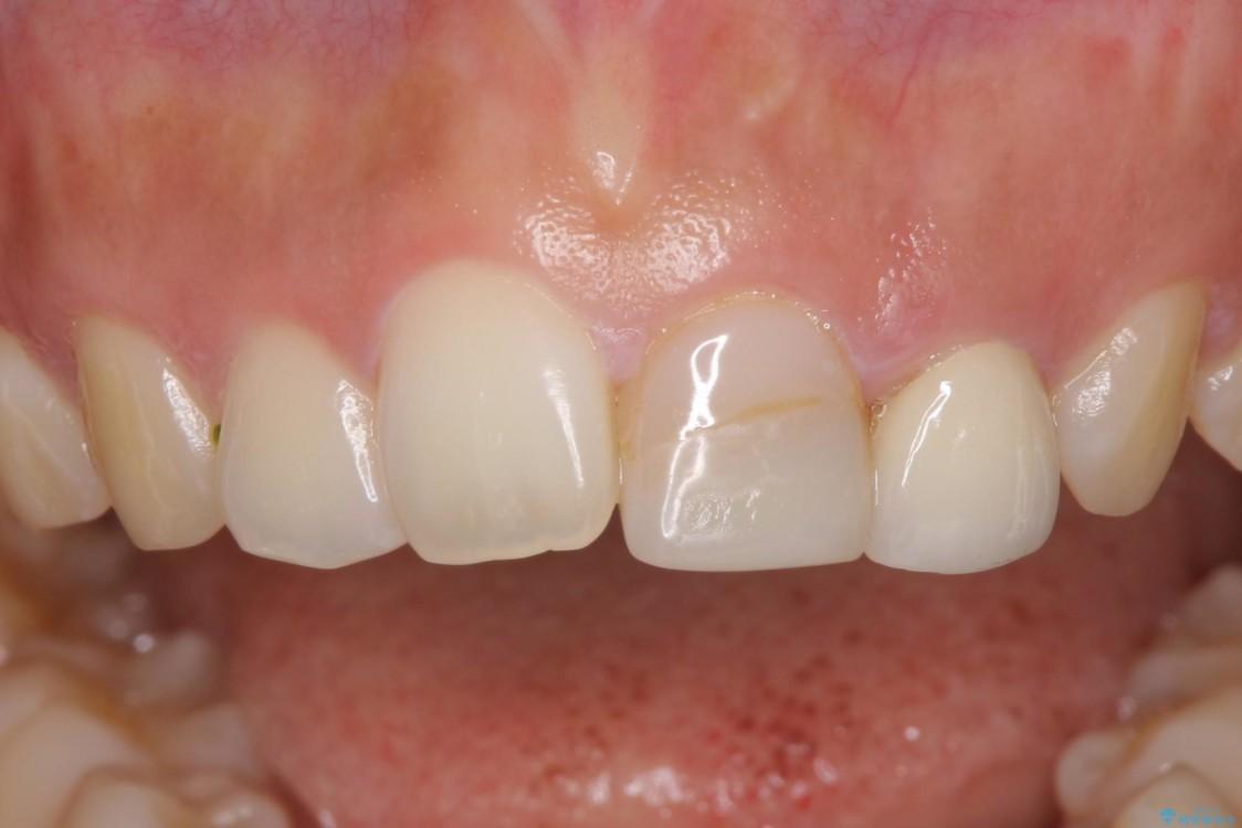 折れて変色してしまった前歯をオールセラミックに 治療前画像