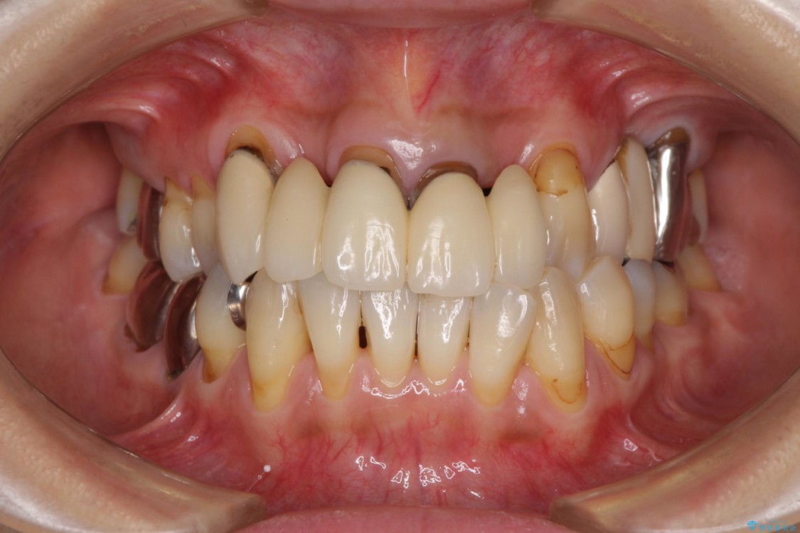 隙間から空気が抜けて話しにくい前歯のブリッジ オールセラミックブリッジにて審美的に仕上げる 治療前