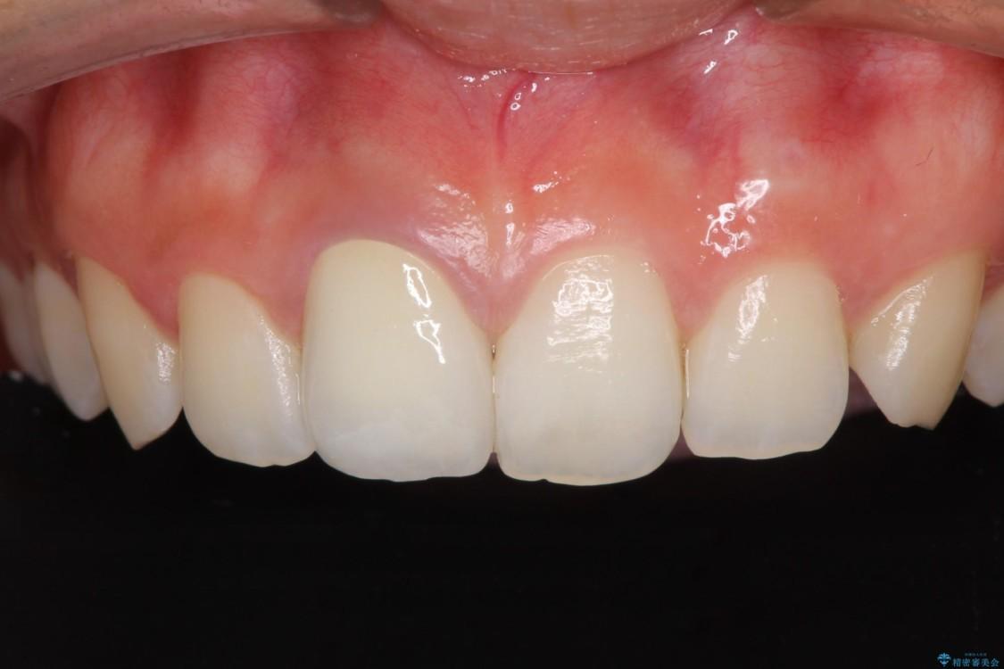 ぶつけて変色した前歯をオーダーメイドタイプのオールセラミッククラウンで美しく アフター
