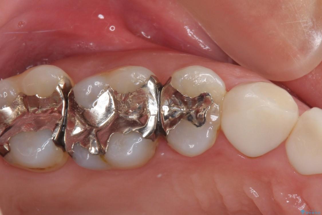 痛みが続く銀歯をセラミックに ビフォー