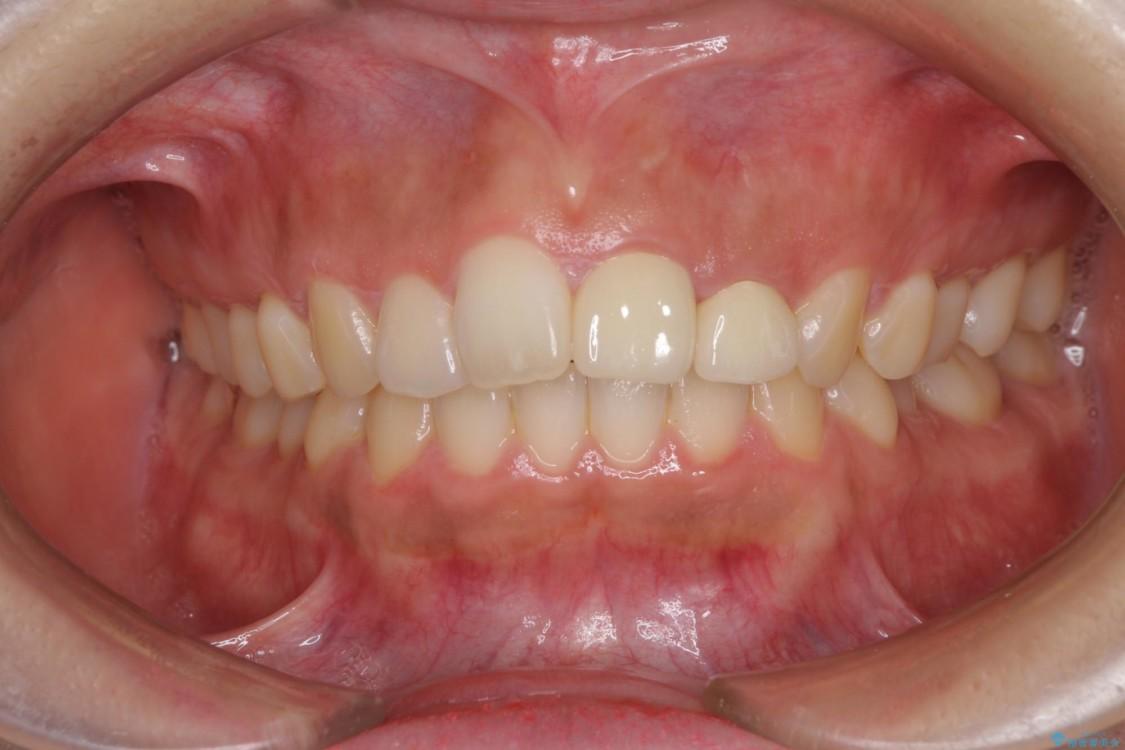 折れて変色してしまった前歯をオールセラミックに 治療後画像