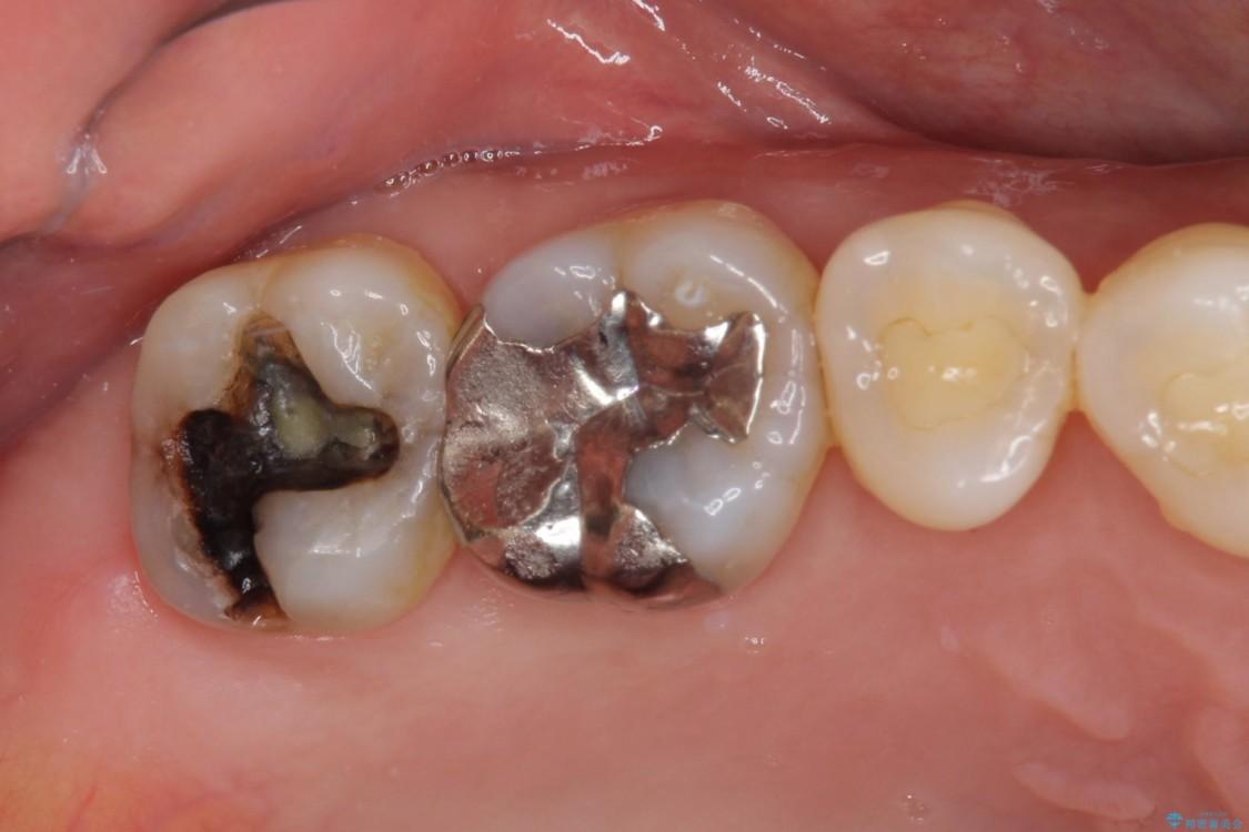 外れてしまった銀歯をゴールドインレーによって修復治療 ビフォー