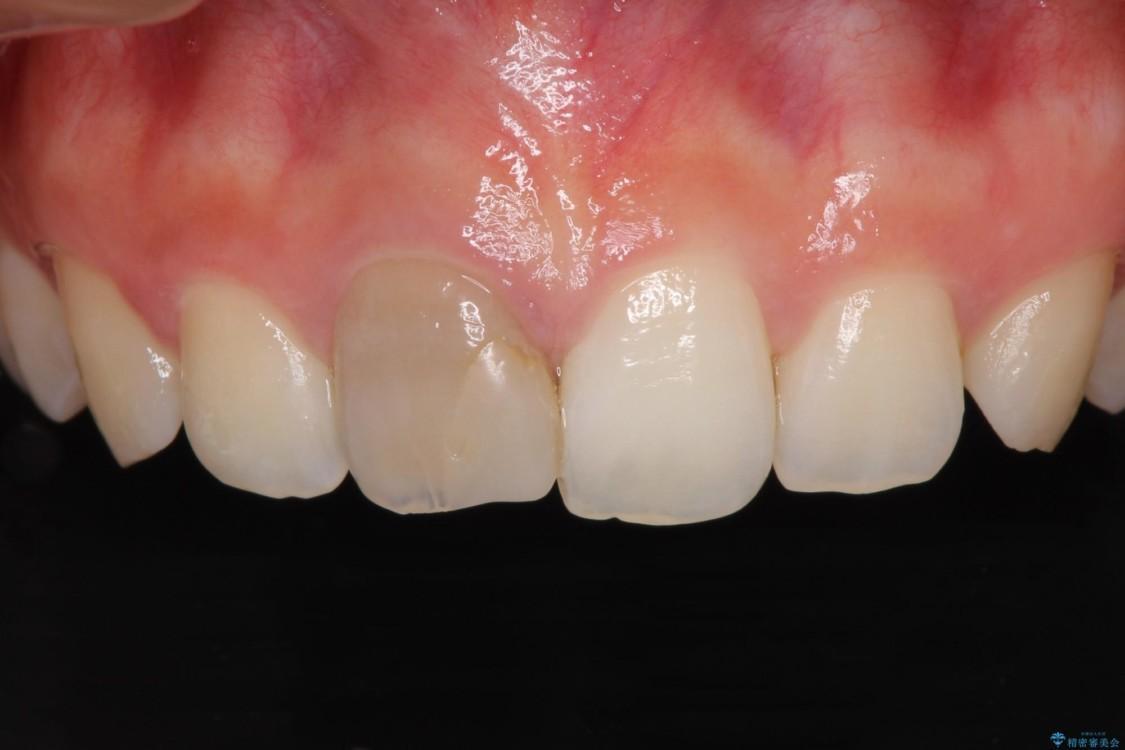 ぶつけて変色した前歯をオーダーメイドタイプのオールセラミッククラウンで美しく ビフォー