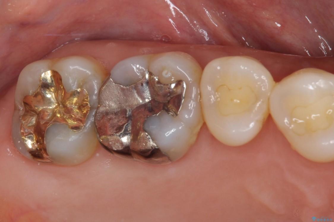 外れてしまった銀歯をゴールドインレーによって修復治療 アフター