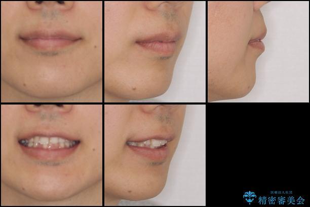 インビザラインによる矯正とインプラント補綴 深い咬み合わせと奥歯の欠損治療 治療前画像